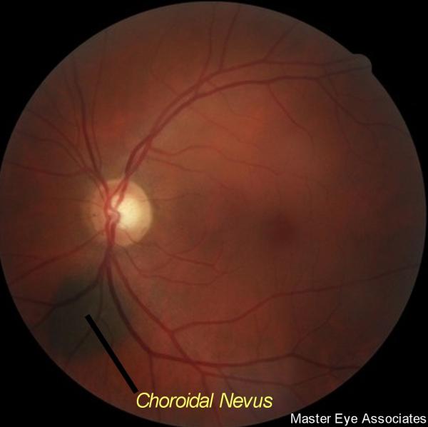 Choroidal nevus retina pigment not melanoma Master Eye Associates Austin