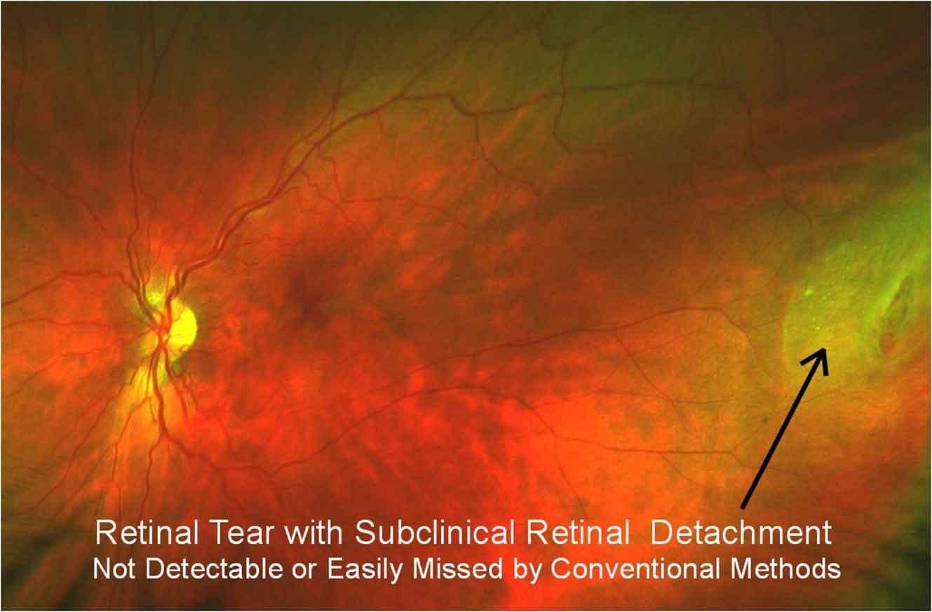 retinal tear