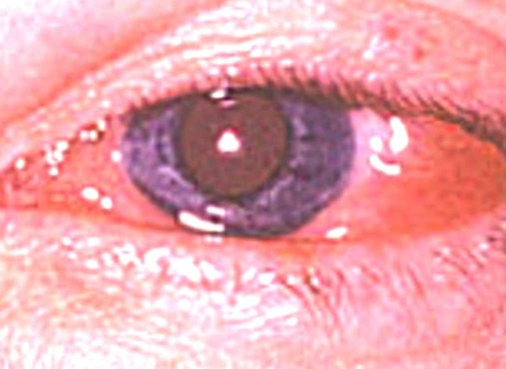 eye disorders